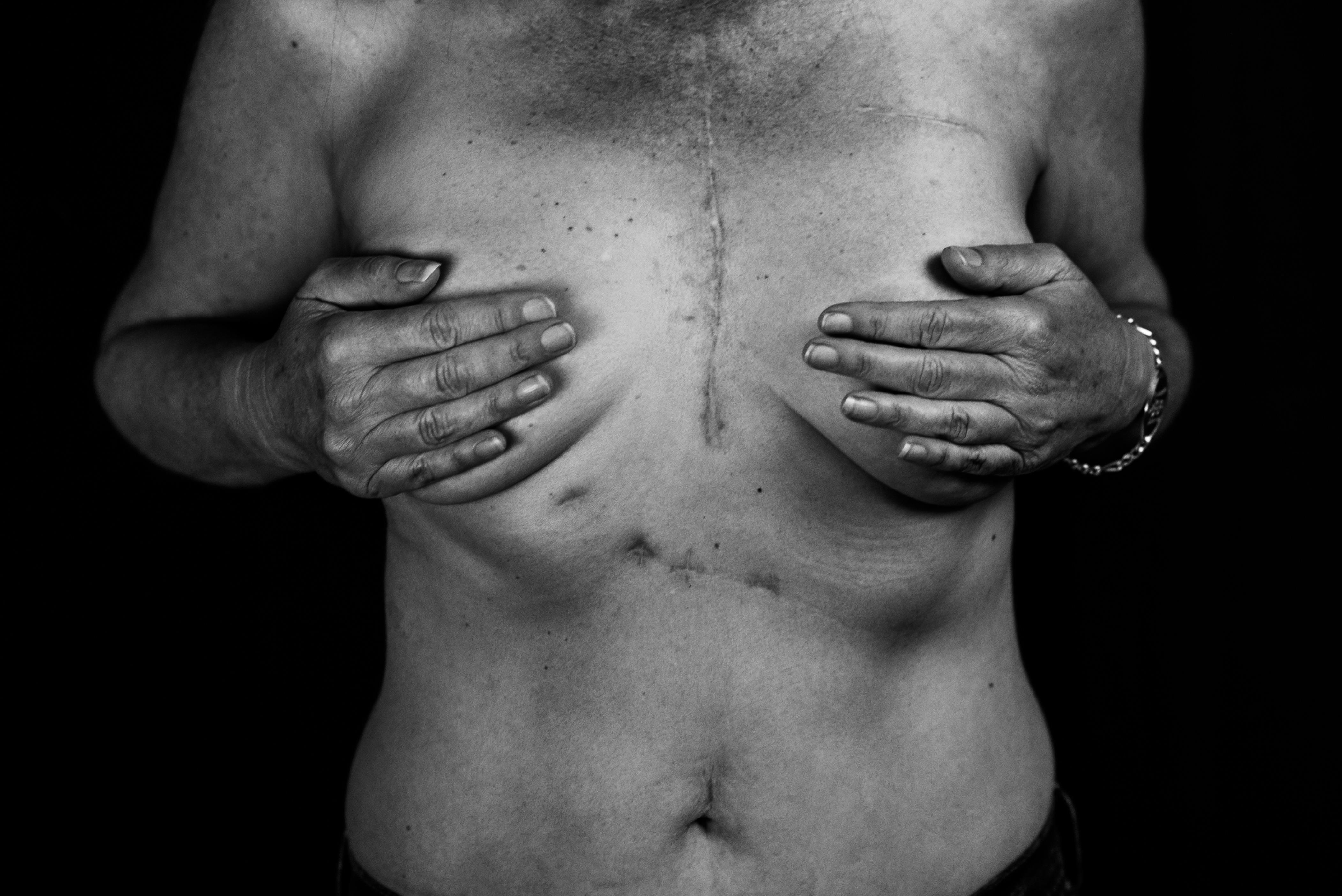 Women's chest shows scars while hands are holding chest.